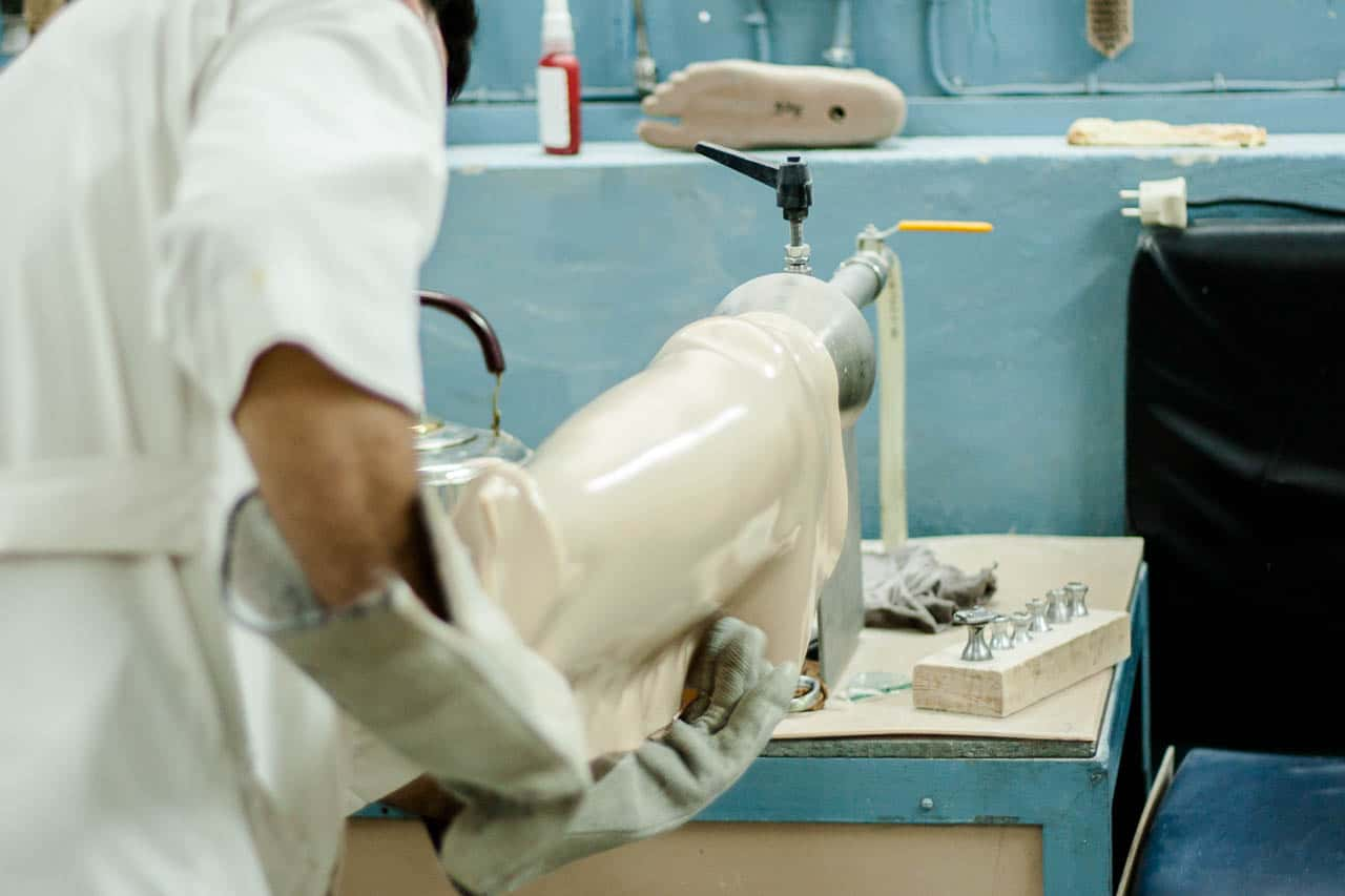A lower leg prothesis being molded in heated plastic